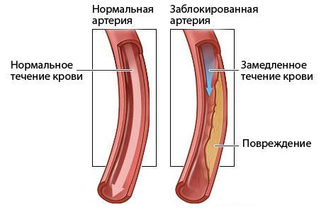 seks-pri-ateroskleroze