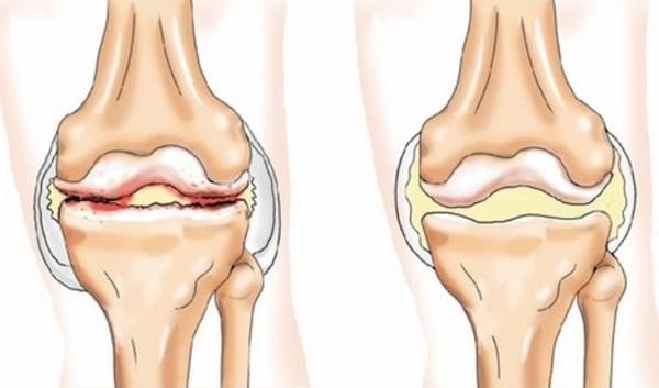 лечение суставов народными средствами лечение радикулита