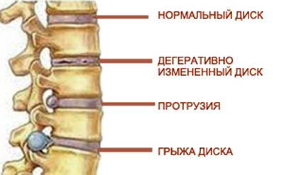 Основным симптомом появления межпозвоночной грыжи есть боль, отдающая в конечности, голову, межреберные участки.