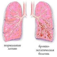 Наиболее частыми причинами бронхоэктазов являются хронические бронхиты, пневмонии, пневмосклероз.