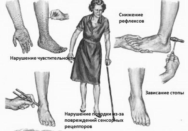Больные с ДП начинают отмечать чувство онемение и неприятных ощущений (боли, покалывание, жжение) в конечностях.