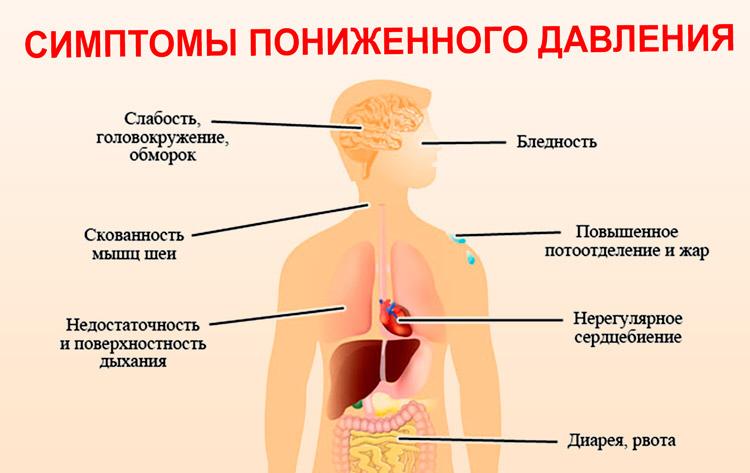 Схема лечения гипотонии