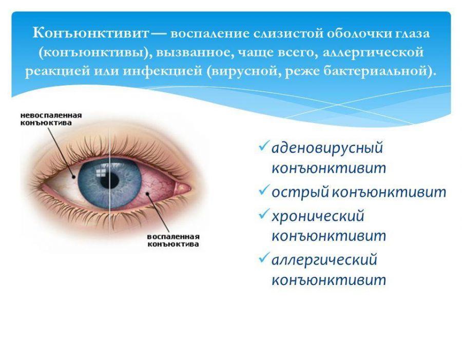 Что такое конъюнктивит глаз