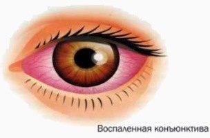 При хроническом виде конъюнктивита пациенты жалуются на ощущение соринки в глазу. Протекание этого вида длится довольно долго и неприятно.