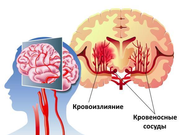 При кровоизлиянии в мозг смертность пациентов значительно выше, чем при инфаркте мозга. В течение первого года болезни умирает около 60 процентов пациентов, половина оставшихся в живых остаются инвалидами на всю жизнь.