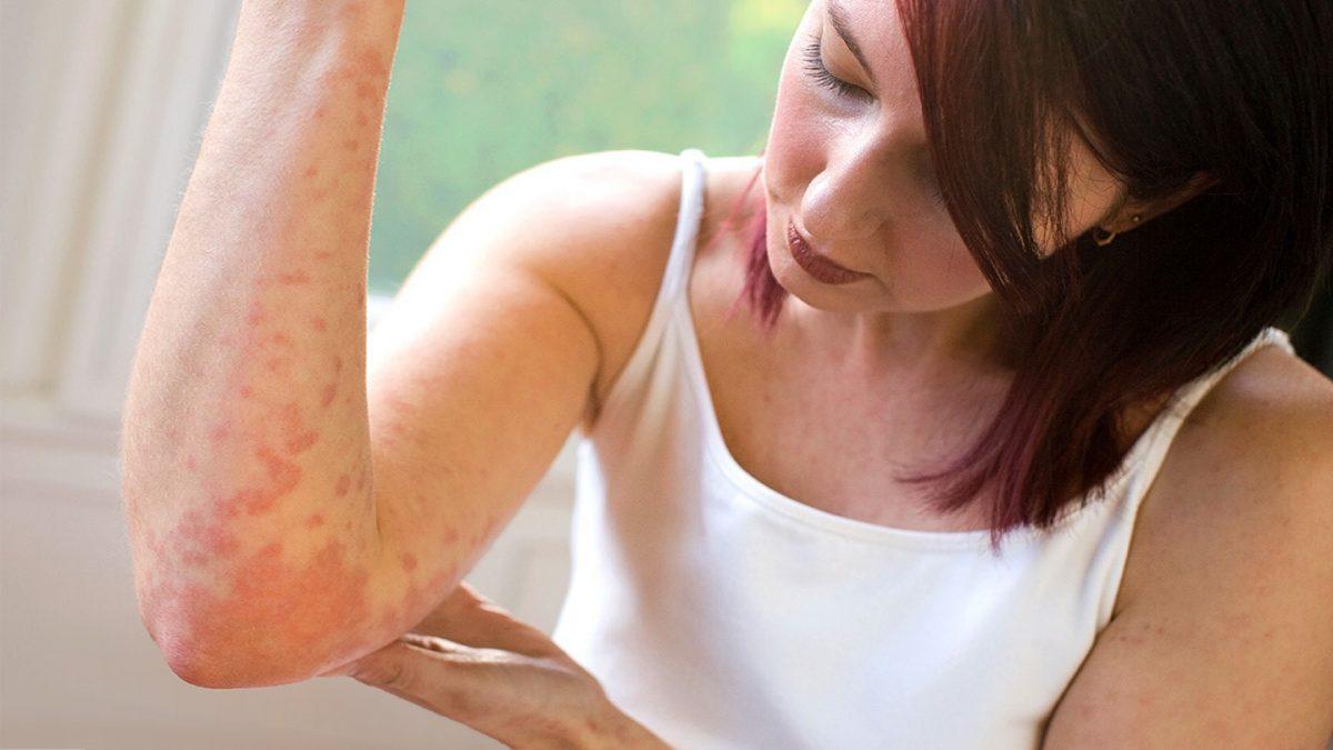 Лечение псориаза: новое в лечении и стандартная терапия