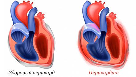 Перикардит развивается как негативное побочное явление многих кардиологических заболевании. Как самостоятельное заболевание перикардит выступает крайне редко.
