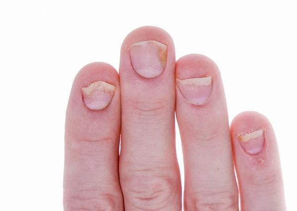 Псориаз ногтей: лечение и медикаментозное воздействие, общая терапия