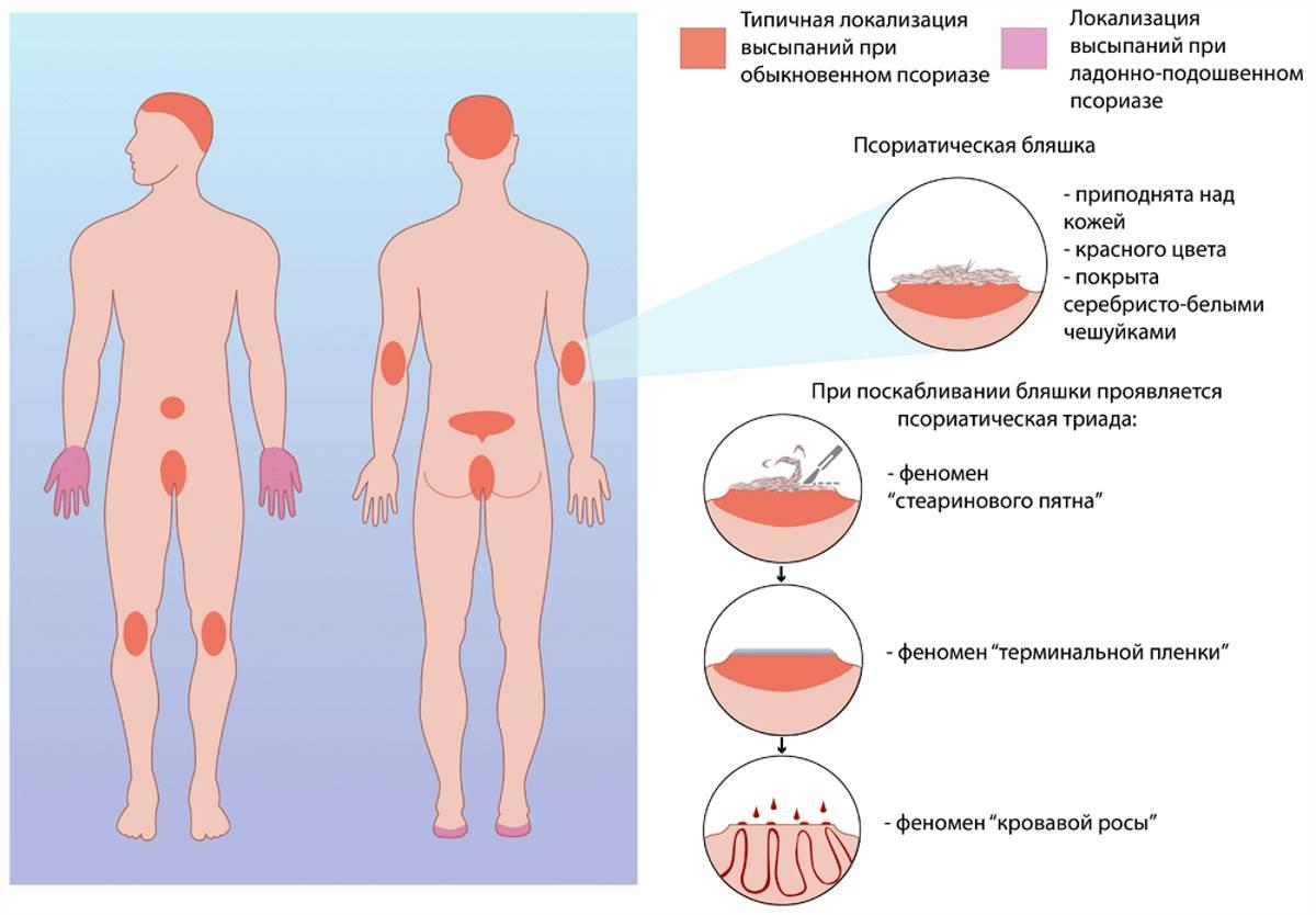 Псориаз - симптомы и проявление заболевания