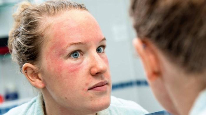 Псориаз на лице: причины, проявления, лечение