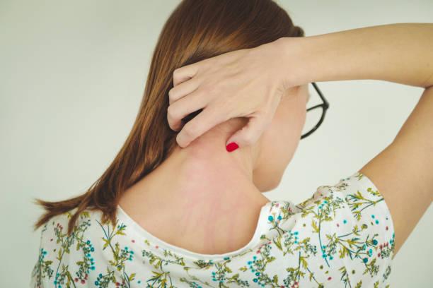 Лечение псориаза в домашних условиях: советы и рекомендации