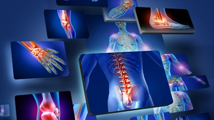 Лечение суставов и костей