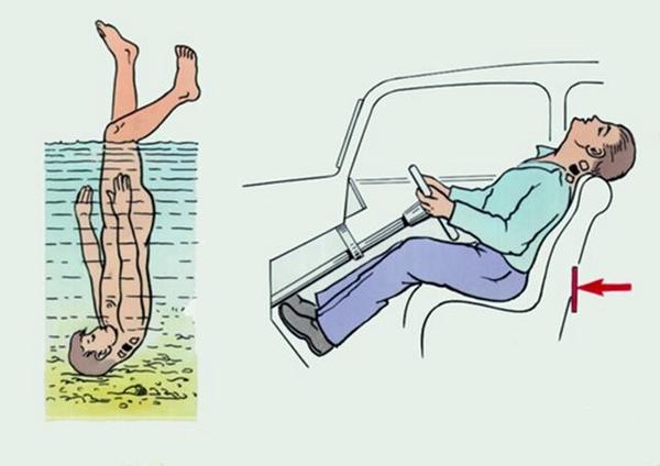 Если существует подозрение на перелом шейного отдела, пострадавшего укладывают на спину, подложив под голову ватно-марлевый круг, или ограничив подвижность шеи специальным полужестким воротником.
