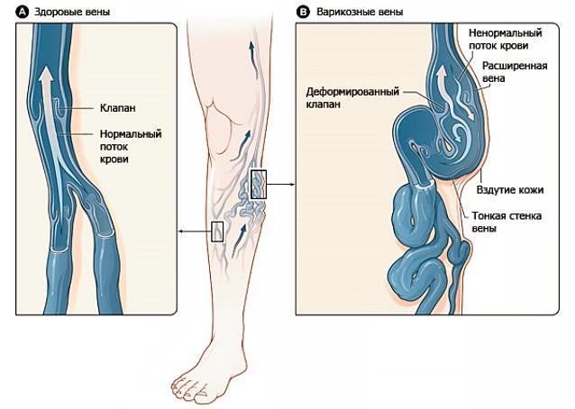 medikamentoznoe-lechenie-vaginalniy-varikoz