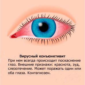 Одним из самых тяжелых осложнений конъюнктивита является кератит и возможная потеря зрения, поэтому необходимо вовремя лечить заболевание и соблюдать необходимые меры для предупреждения заражения.